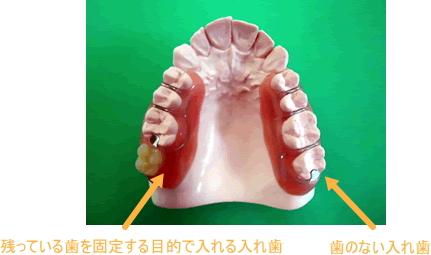 歯が抜けるのを防ぐペリオデンチャー