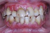 歯周病の口腔内