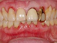 歯周内科治療の説明・処方