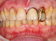 歯肉の腫れがひき出血も止まる