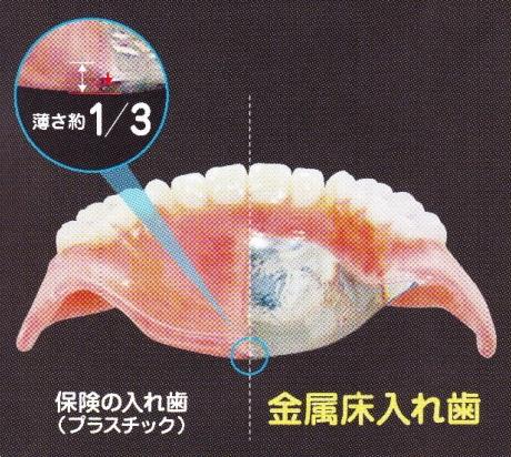 金属床の入れ歯の特徴