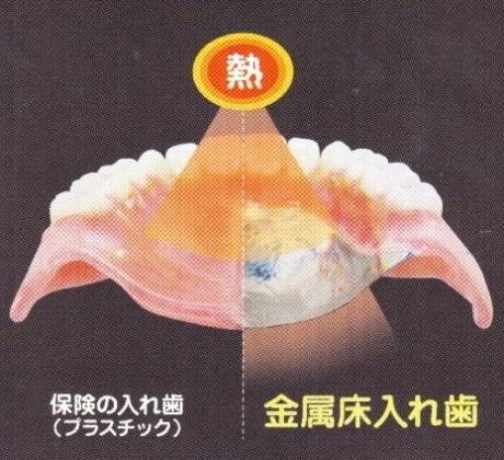 金属床の入れ歯の特徴(2)