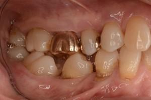 歯を抜いたところの歯並び