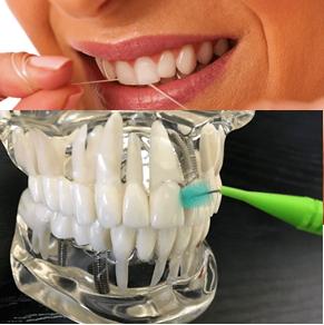 デンタルフロスと歯間ブラシ